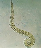 Enterobijaza