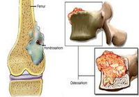 tumor-kostiju