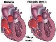Trikuspidna stenoza i regurgitacija
