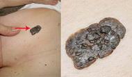 tumori_kože
