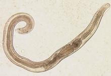 Enterobius-vermicularis2