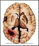 Tumori_mozga
