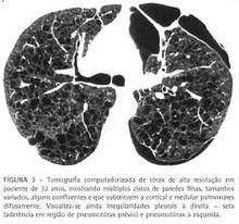 angiomiolipom