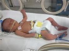 bolesno-novorodjence