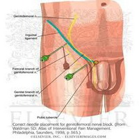 genitofemoralna-neuralgija