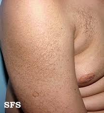 Ichthyosis-vulgaris
