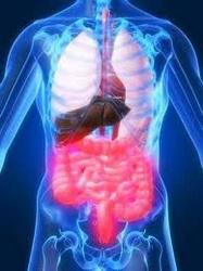 Irritable_bowel_syndrome