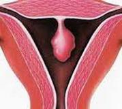 endometrijalni-polip