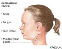 Poliradiculoneuritis