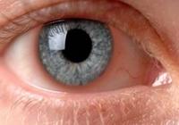 iritis eye