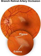 sindrom-okluzije-centralne-retinalne-arterije