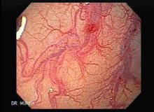 Angiodysplasia Myeloma3