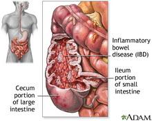 ischemic-colitis