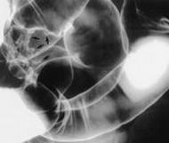 endometrioza-rektuma-kolona