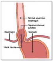sindrom-dovodne-vijuge