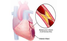 Akutni-infarkt-miokarda