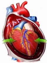 tamponada srca
