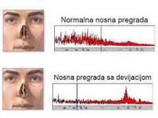 deformacija nosnog septuma